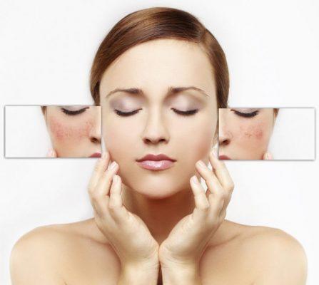 Stearic Acid còn có công dụng trong việc điều trị các tổn thương cho da